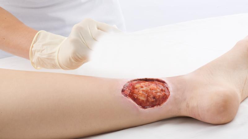 Curativo - BSN Medical - Cutimed Protect - Spray Barreira 28ml   Vitae Saúde